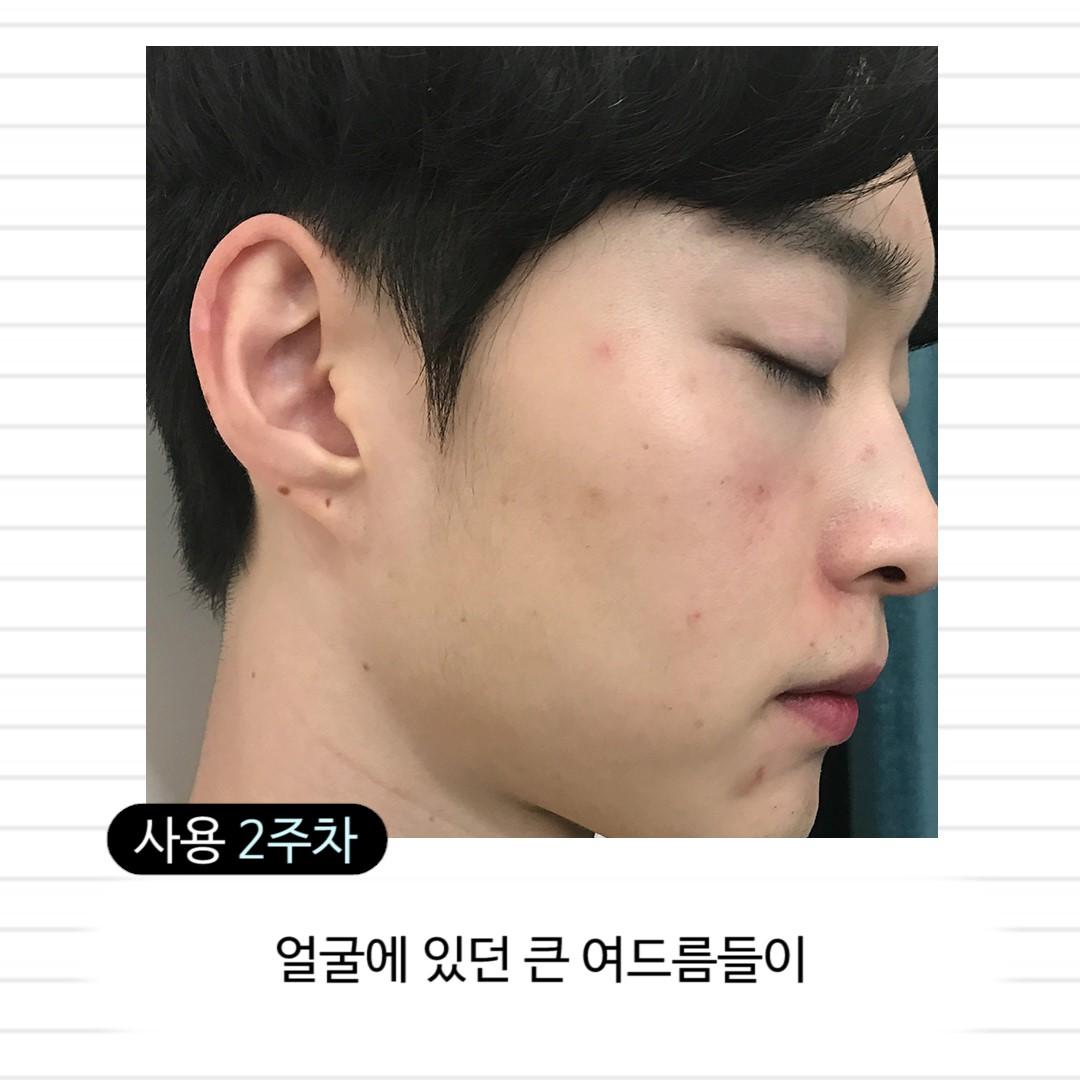 Dr.wonder-控油-油性肌-洗面乳-起泡-改善膚質